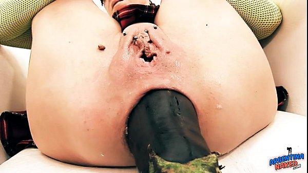 Insanely Huge Prolapse! Cervix Exposure. Eggplant Penetratio 54 sec